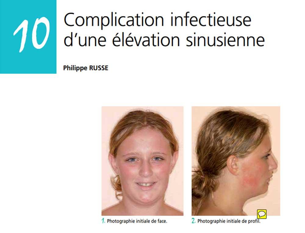 complication sinus