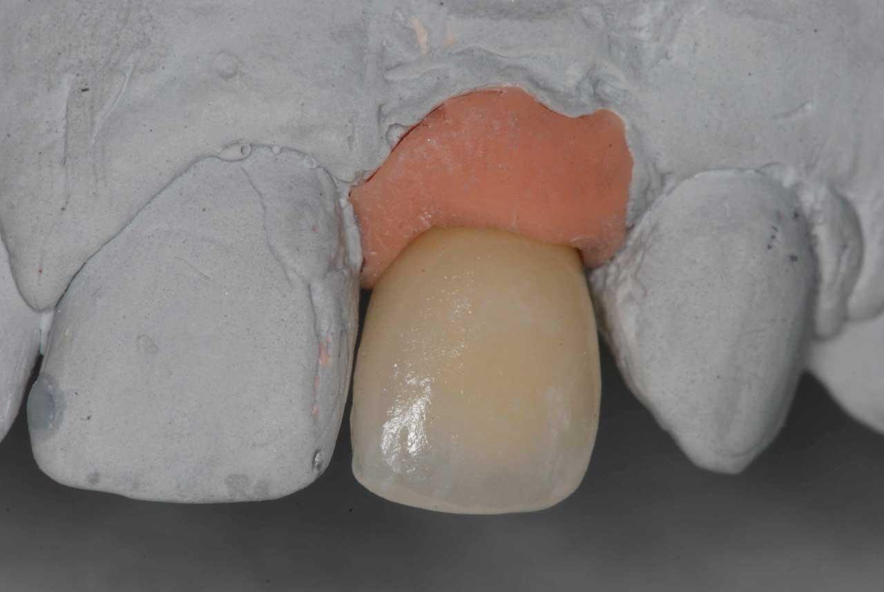 Agénésie bilatérale traitée par implants de petit diamètre